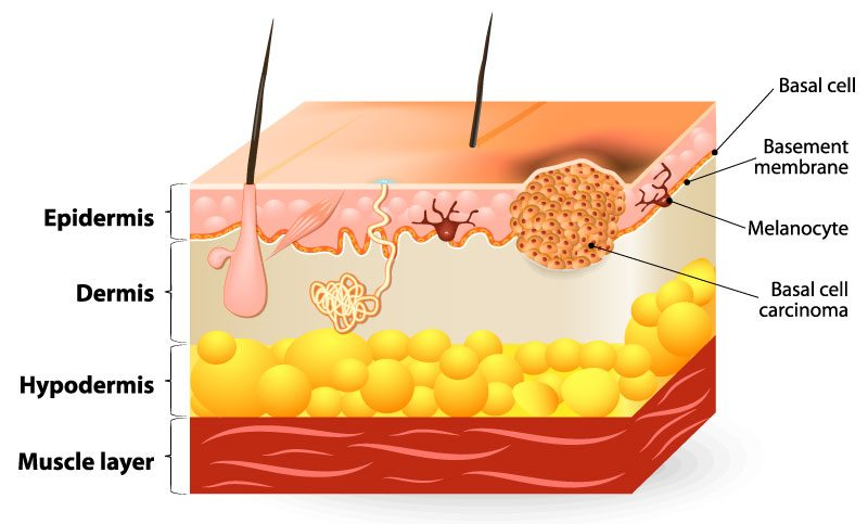 diagram of basal cell carcinoma