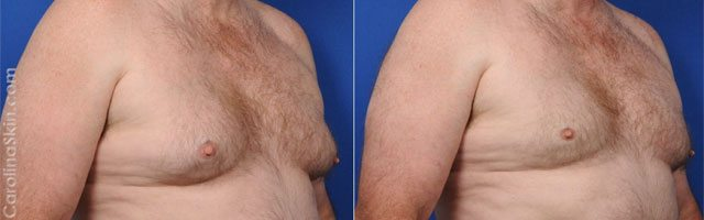 Coolsculpting® results for pseudogynecomastia or enlarged male breasts