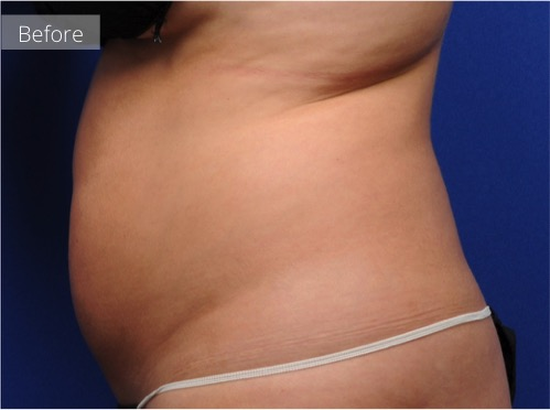 side view of abdomen before CoolSculpting