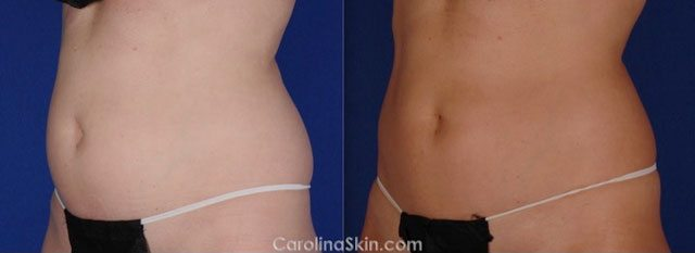 CoolSculpting before and after results for abdominal fat