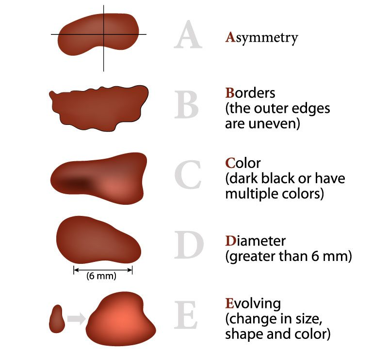 diagram of ABCDEs of melanoma