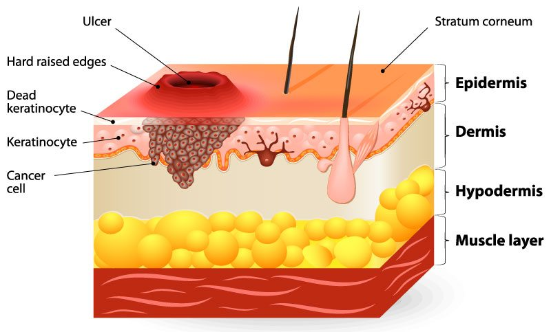 diagram of squamous cell carcinoma