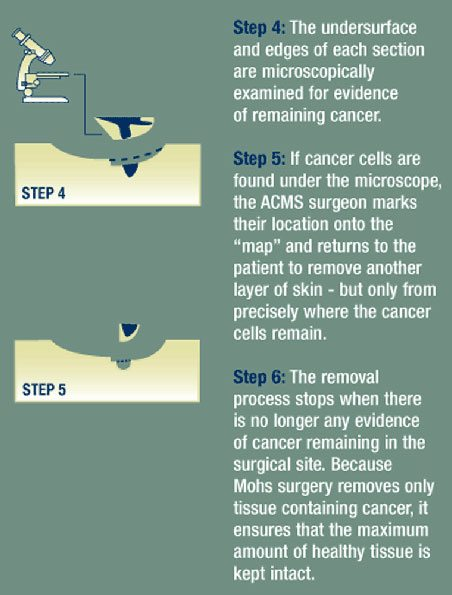 diagram of mohs surgery process