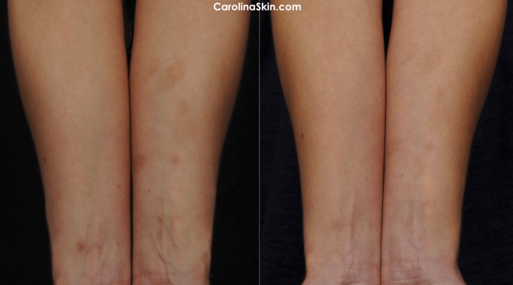 before and after results of laser scar treatment