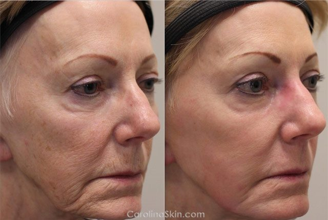 female face laser resurfacing before and after results