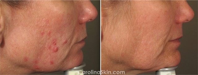 before and after results of laser treatment for adult acne