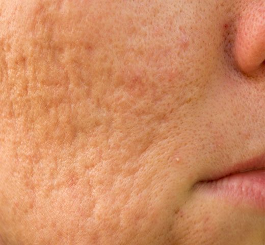 close up of face with acne scars