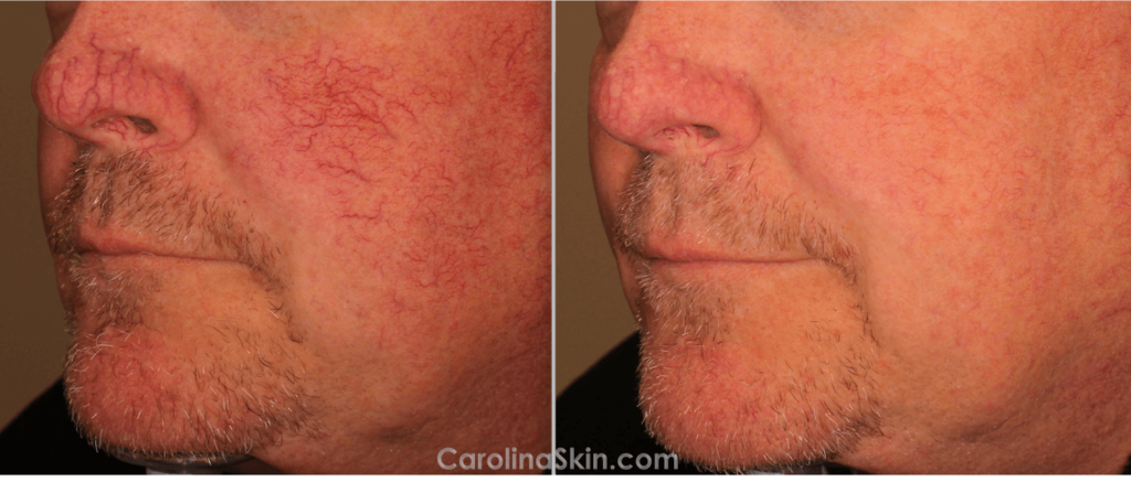before and after pictures of laser treatment for facial redness
