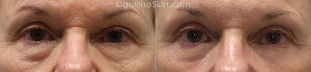 Blepharoplasty eyelid surgery before and after results