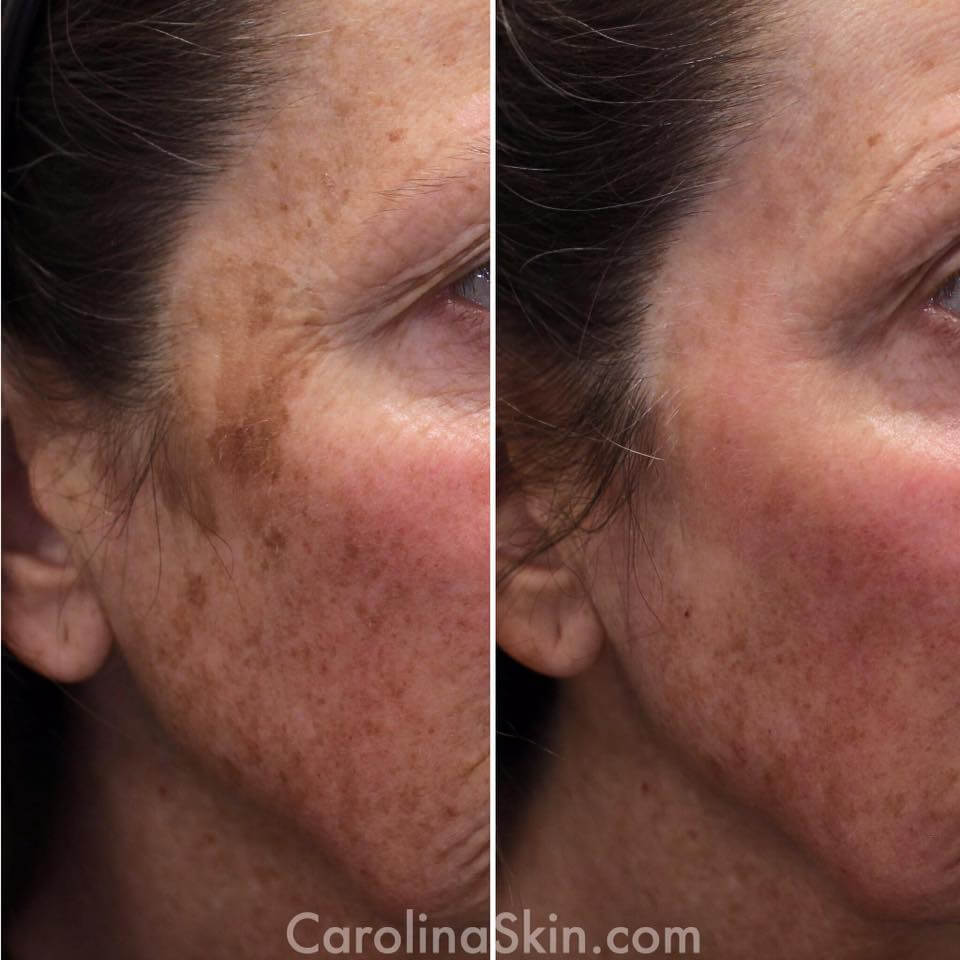 before and after results of fraxel laser treatment for brown spots on face