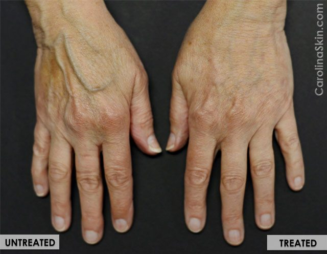 Radiesse hand filler treatment results