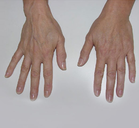 Varicose Amp Spider Vein Treatments Dermatology Laser