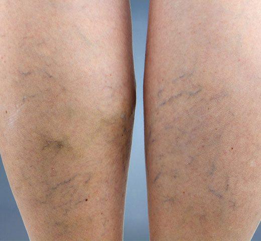 krampfadern an den beinen bei männern blaue flecken chemnitz