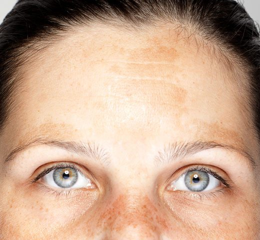 example of melasma