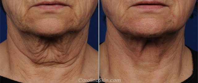 Double Chin, Neck Fat & Skin Tightening Treatments Charlotte