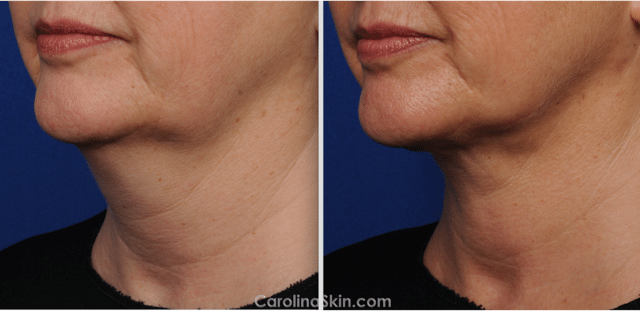 female neck laser liposuction before and after results