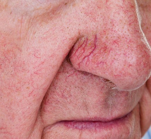 Example of facial redness and veins