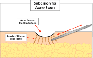 diagram showing how subcision for acne scars works