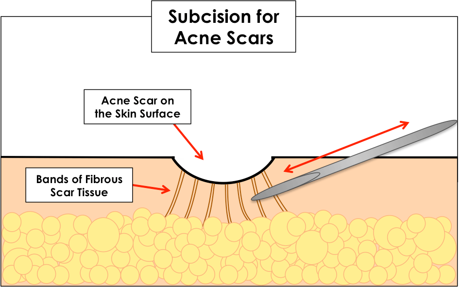 Best Acne Scars Treatment in Charlotte NC DLVSC