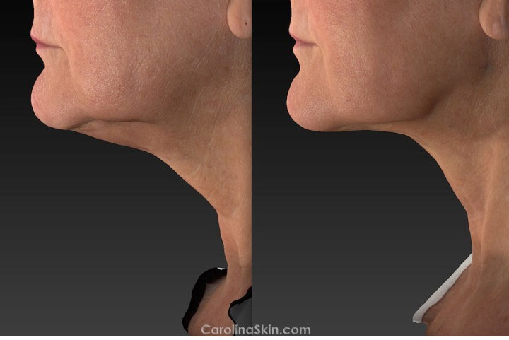 before and after results of neck liposuction with laser skin tightening