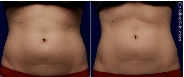 UltraShape Power for abdominal fat before and after results