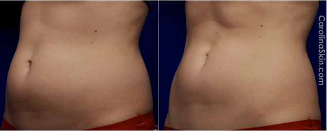 UltraShape before and after results for abdomen of female