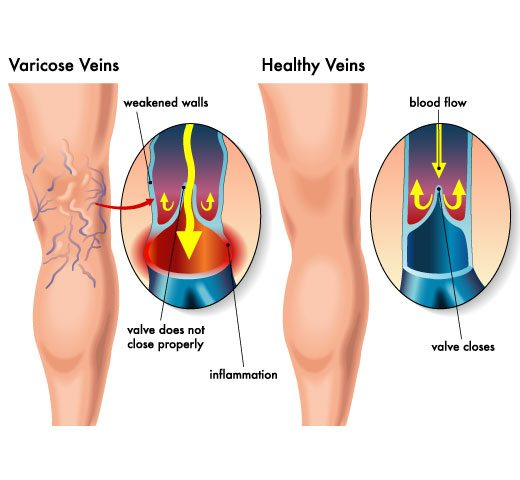 Vein Problems Dermatology Laser Vein Specialists Of The Carolinas