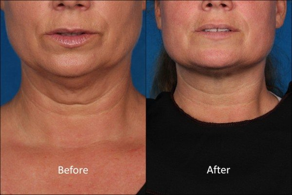 Breakthrough Treatments For Neck Wrinkles Sagging And