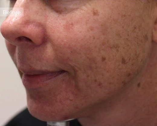female face before IPL for brown spots