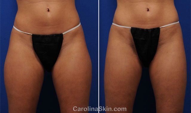 before and after results of liposuction for thighs of female patient