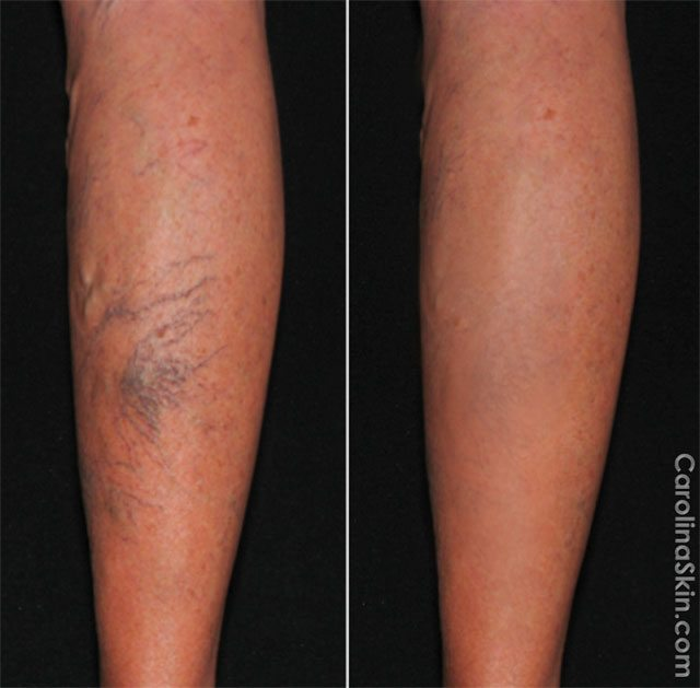 before and after results from Sclerotherapy treatment