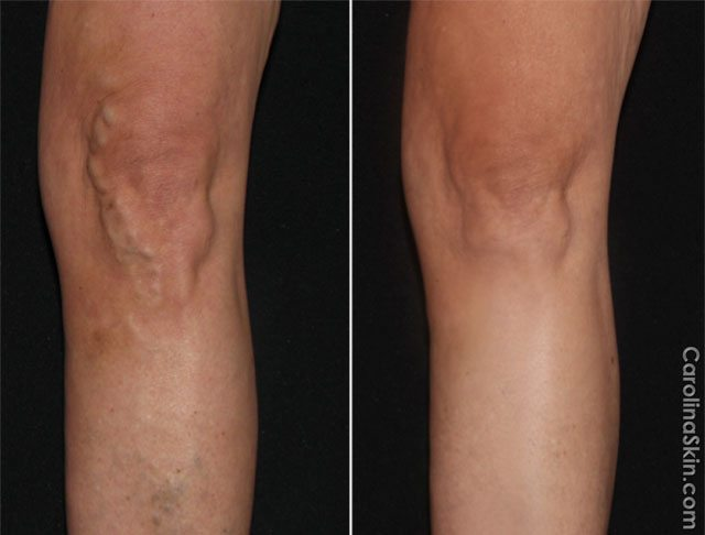 before and after results of laser treatment for varicose veins