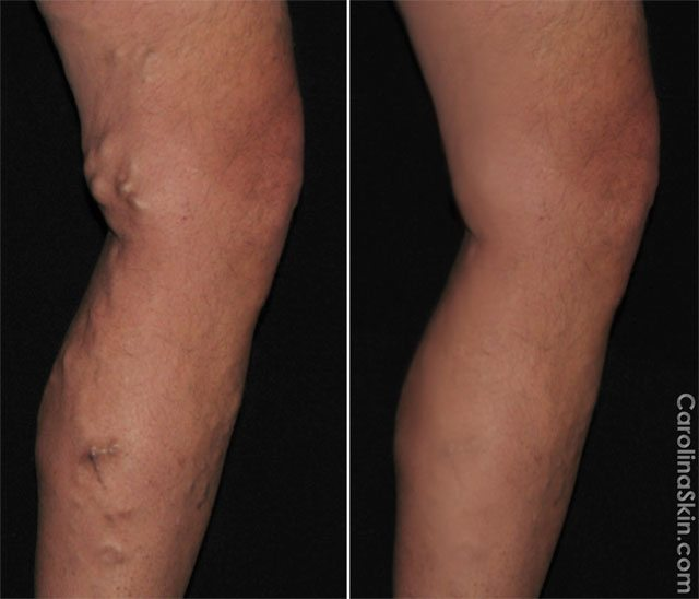 before and after results of varicose vein laser treatment