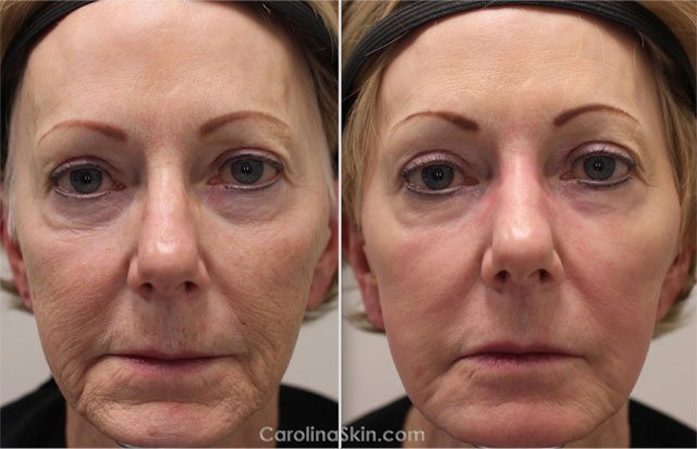 before and after results from laser resurfacing for facial wrinkles