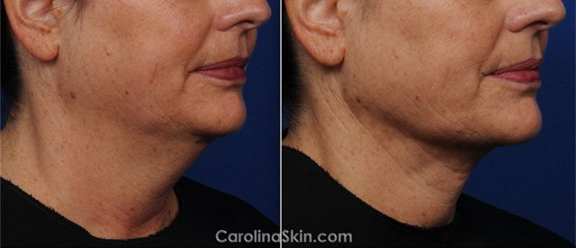 Laser Liposuction before and after results for neck and jawline