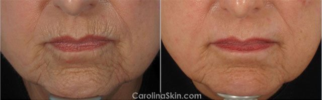 before and after results of laser resurfacing for mouth wrinkles