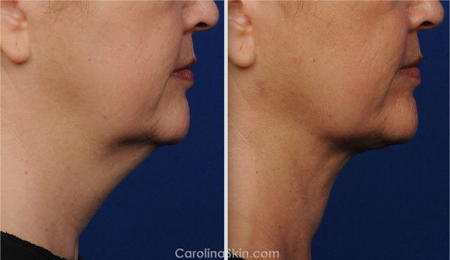laser liposuction before and after results for neck of female patient