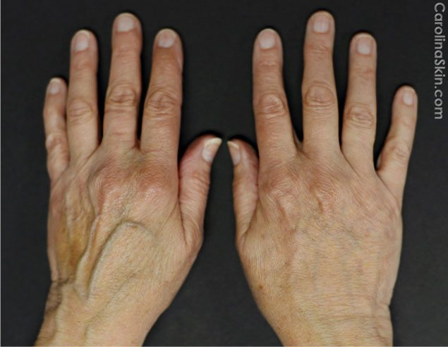 before and after of Radiesse hand filler