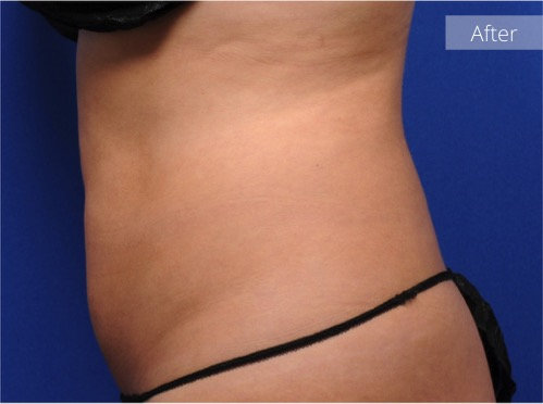 side view of abdomen after CoolSculpting
