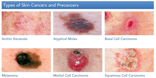 Capella Blog Post Featuring Dr Munavalli Dermatology Laser Vein Specialists Of The Carolinas