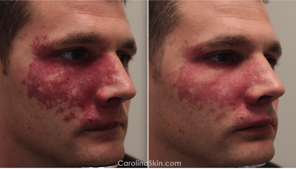 port-wine stain birthmark laser treatment results