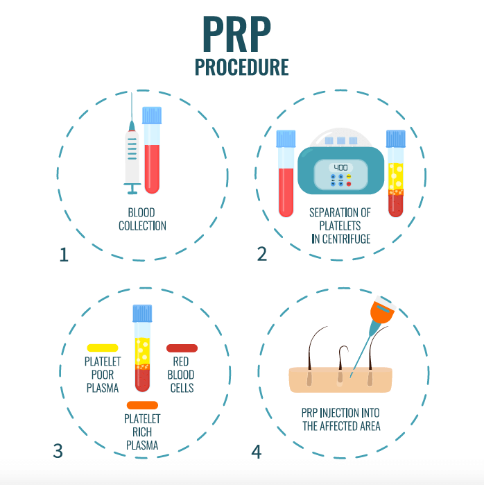 Infographic of the PRP treatment process