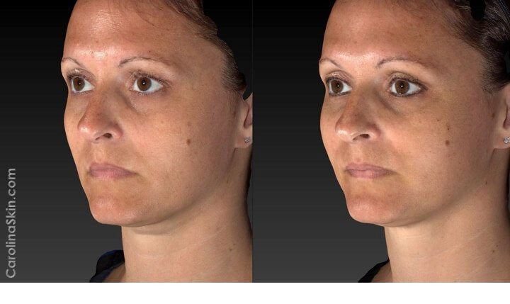 female face before and after Silhouette InstaLift