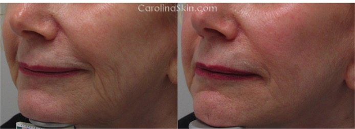 female face before and after Profound radio frequency treatment