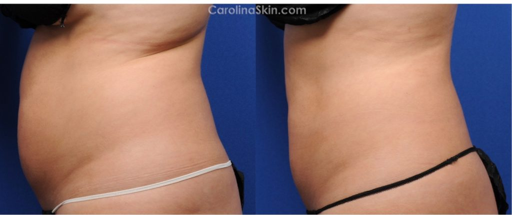 Side View of CoolSculpting Before & After Results