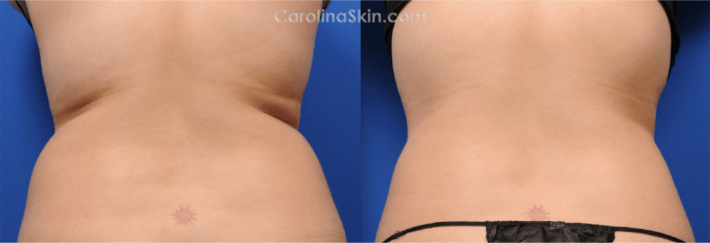 CoolSculpting for love handles before and after results
