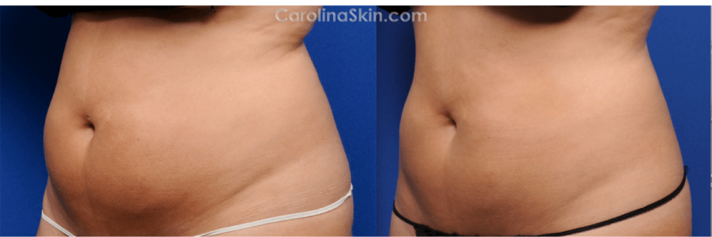 CoolSculpting for abdomen and love handles before and after results