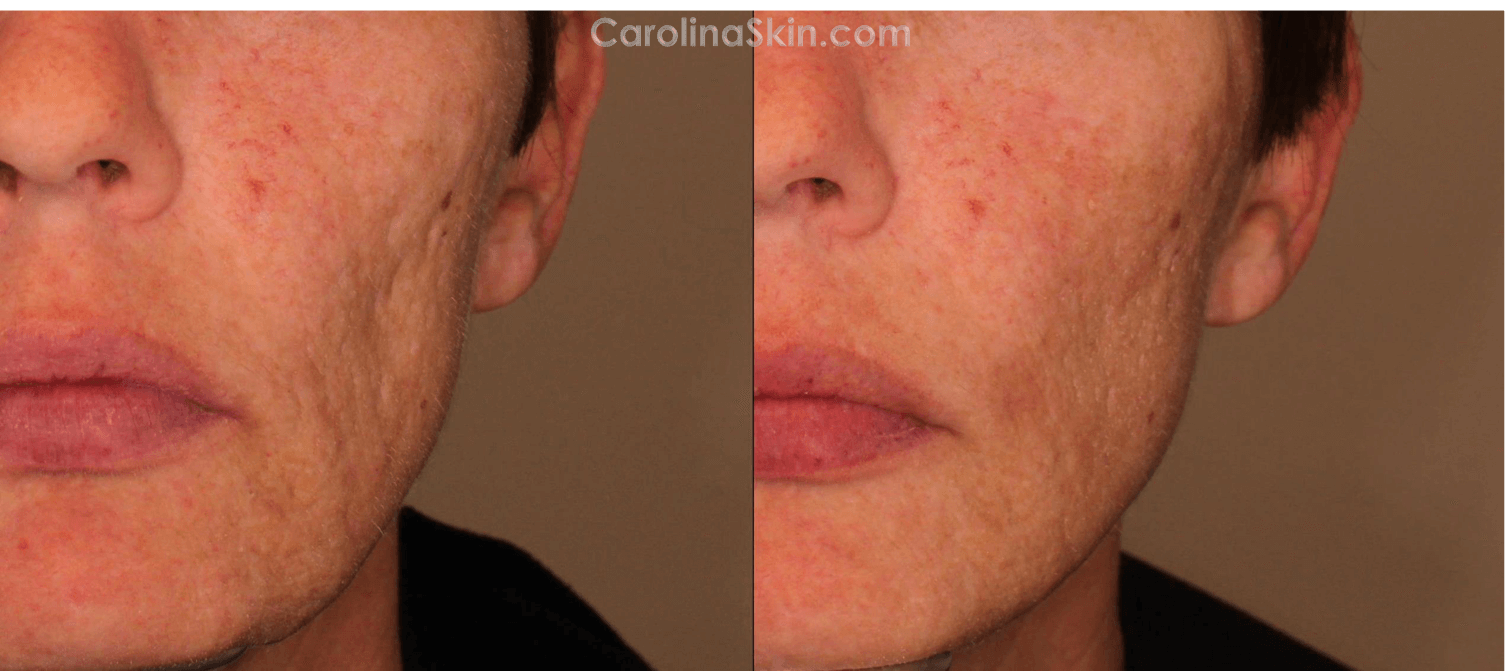 close up view of acne scar treatment before and after results