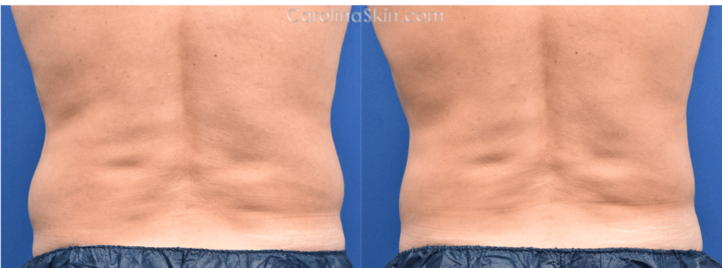 before and after results from CoolSculpting for love handles