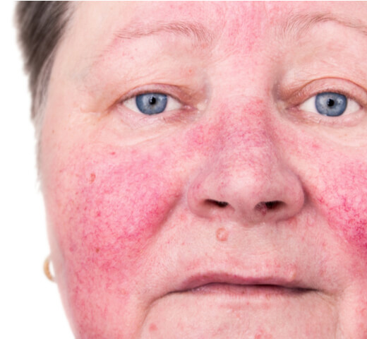 Rosacea Clinical Trial